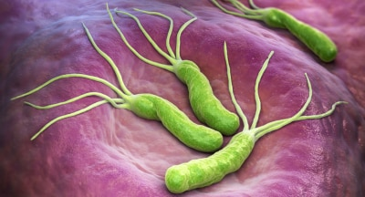gastroenterologista-montes-claros-h-pylori